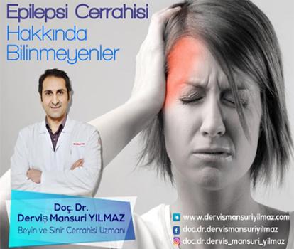 epilepsi-cerrahisi