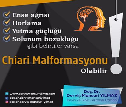 chiari_malformasyonu